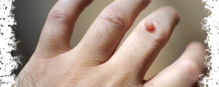 Родинка на среднем пальце левой или правой руки — ее значение
