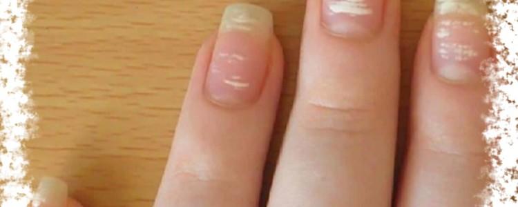 Белые пятна на ногтях пальцев рук — что это означает