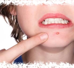 Прыщ на носу и лице — к чему это и что значит примета