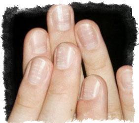 О чем говорит пятно на безымянном пальце