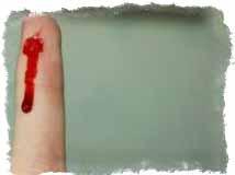 Заговор на остановку крови