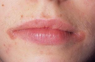 Высыпания в уголке губ