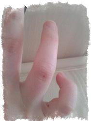 Что означает родинка на безымянном пальце правой руки