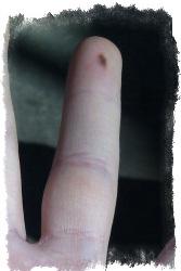 Значение родинки на безымянном пальце левой руки