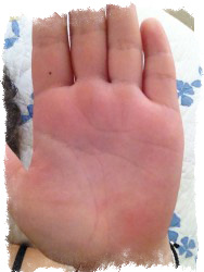 родинка на указательном пальце левой руки